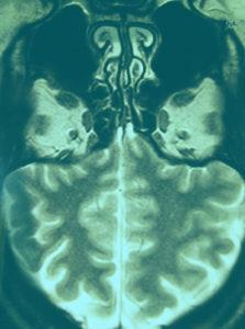 """Tarr-pit MRI"", MRI in Holzrahmen, 2010/16"